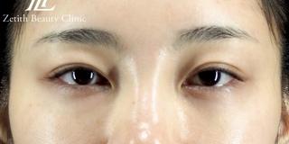 Zetith Beauty Clinicの目の下のクマの症例写真(アフター)