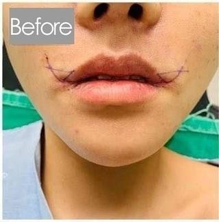 清潭女神美容外科の口角挙上の症例写真(ビフォー)