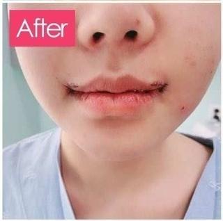 清潭女神美容外科の口角挙上の症例写真(アフター)