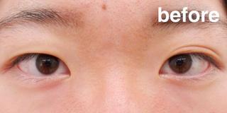 高崎TAクリニックアソシエの埋没法(二重整形)+目頭切開術+涙袋形成(ヒアルロン酸注射)の症例写真(ビフォー)