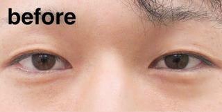 高崎TAクリニックアソシエのコスメリングプロ(ダブル)の症例写真(ビフォー)