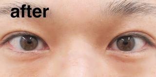 高崎TAクリニックアソシエのコスメリングプロ(ダブル)の症例写真(アフター)