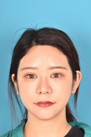 アネシス美容クリニックの二重全切開・目頭切開法・目尻切開法の症例写真(アフター)