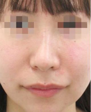 福岡TAクリニックのTAC式人中短縮術の症例写真(ビフォー)
