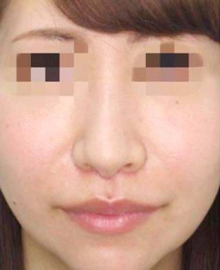 福岡TAクリニックのTAC式人中短縮術の症例写真(アフター)