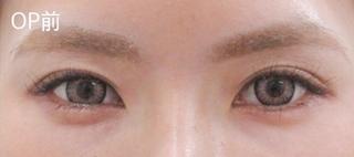 福岡TAクリニックのグラマラスライン(切開法)+目尻切開術の症例写真(ビフォー)