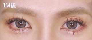 福岡TAクリニックのグラマラスライン(切開法)+目尻切開術の症例写真(アフター)