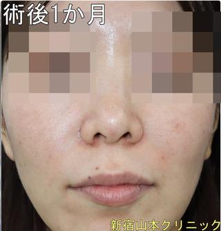 山本クリニックの小鼻縮小術(鼻翼縮小術)の症例写真(アフター)