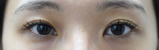 みずほクリニックの上まぶたのくぼみ治療(ヒアルロン酸注入)の症例写真(アフター)
