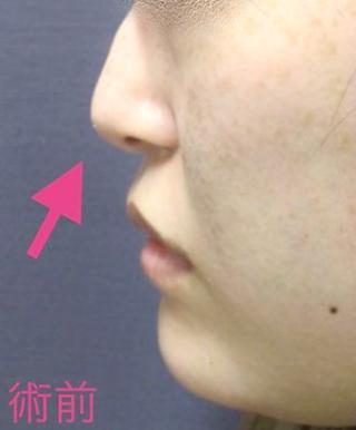 新宿TAクリニックの鼻尖4Dノーズ+鼻尖縮小術の症例写真(ビフォー)