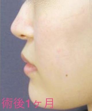 新宿TAクリニックの鼻尖4Dノーズ+鼻尖縮小術の症例写真(アフター)