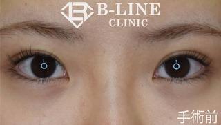 B-LINE CLINICの【グラマラスライン形成】1週間後の症例写真(ビフォー)