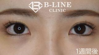 B-LINE CLINICの【グラマラスライン形成】1週間後の症例写真(アフター)