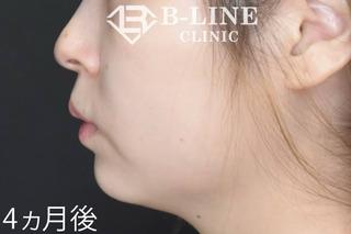 B-LINE CLINICの【クイックEライン形成】4ヵ月後の症例写真(アフター)