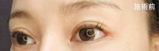 新宿TAクリニックのグラマラスライン(切開法)の症例写真(ビフォー)