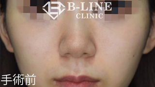 B-LINE CLINICの【鼻先縮小術】1ヵ月後の症例写真(ビフォー)