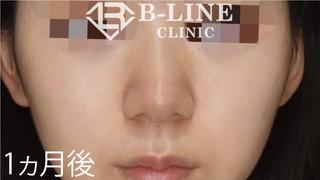 B-LINE CLINICの【鼻先縮小術】1ヵ月後の症例写真(アフター)