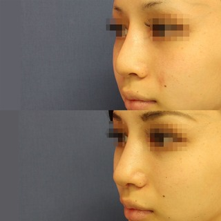 グローバルビューティークリニック 大阪院の『 プロテーゼ入れ替え 』『 鼻尖形成(3D) 』『 鼻尖部軟骨移植 』『 鼻柱下降術 』『 鼻翼縮小 』の症例写真(アフター)