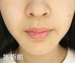新宿TAクリニックのTAC式 人中短縮術の症例写真(ビフォー)