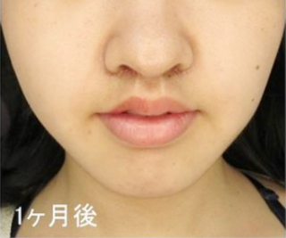 新宿TAクリニックのTAC式 人中短縮術の症例写真(アフター)
