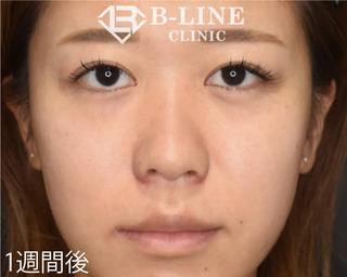 B-LINE CLINICの【小鼻縮小術】1週間後の症例写真(アフター)