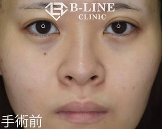B-LINE CLINICの【小鼻縮小術】3ヵ月後の症例写真(ビフォー)