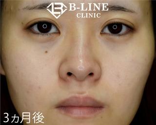 B-LINE CLINICの【小鼻縮小術】3ヵ月後の症例写真(アフター)