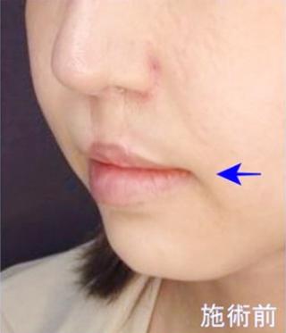 新宿TAクリニックの口角挙上(口角リフト)の症例写真(ビフォー)
