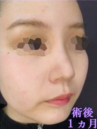新宿TAクリニックの鼻翼縮小術(小鼻縮小)+ヴィーナスノーズ+鼻孔縁拳上術+鼻翼拳上術+鼻のヒアルロン酸注射の症例写真(アフター)