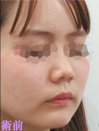 新宿TAクリニックの鼻翼縮小術(小鼻縮小)+ヴィーナスノーズ+鼻孔縁拳上術+鼻翼拳上術+鼻のヒアルロン酸注射の症例写真(ビフォー)