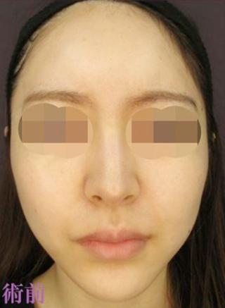 新宿TAクリニックのTAC式ツヤ肌コラーゲンリフト+メーラーファット除去+バッカルファット除去の症例写真(ビフォー)