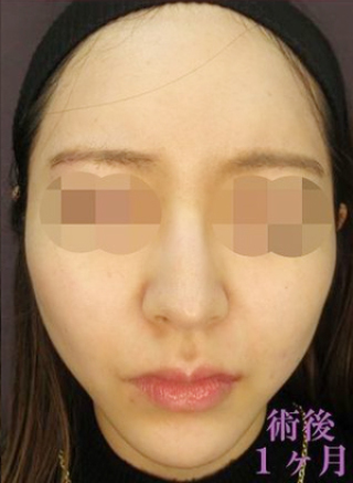新宿TAクリニックのTAC式ツヤ肌コラーゲンリフト+メーラーファット除去+バッカルファット除去の症例写真(アフター)