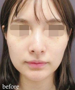 銀座TAクリニックのTAC式キツネシルエット(ダイヤライン)の症例写真(ビフォー)