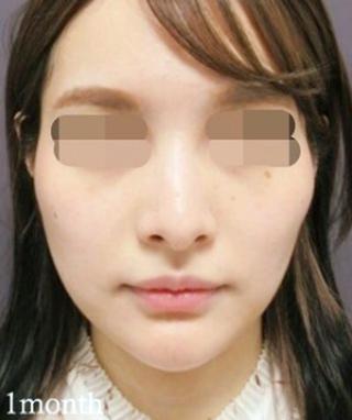 銀座TAクリニックのTAC式キツネシルエット(ダイヤライン)の症例写真(アフター)