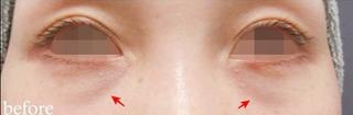 銀座TAクリニックの下眼瞼脱脂術の症例写真(ビフォー)