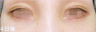 銀座TAクリニックの下眼瞼脱脂術の症例写真(アフター)