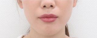 銀座TAクリニックのTAC式ツヤ肌コラーゲンリフトの症例写真(ビフォー)