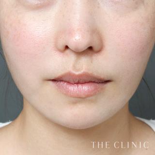 THE CLINIC(ザ・クリニック)名古屋院のベイザー脂肪吸引(頬+顎下)の症例写真(アフター)