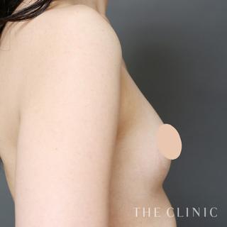 THE CLINIC(ザ・クリニック)名古屋院のコンデンスリッチ豊胸の症例写真(ビフォー)