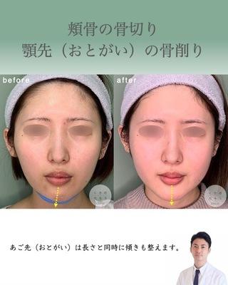 くさのたろうクリニックの頬骨骨切り・おとがい骨削りの症例写真(ビフォー)