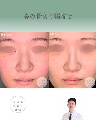 くさのたろうクリニックの鼻骨骨切り幅寄せの症例写真(ビフォー)