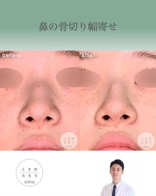 くさのたろうクリニックの鼻骨骨切り幅寄せの症例写真(アフター)