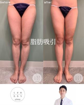 くさのたろうクリニックの脂肪吸引(大腿前面・後面・ふくらはぎ)の症例写真(アフター)
