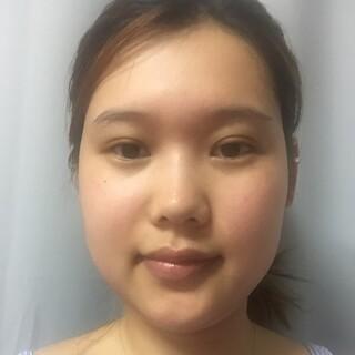 マーブル整形外科の鼻手術(鼻先+鼻筋+鷲鼻矯正)、顎下脂肪吸引の症例写真(ビフォー)
