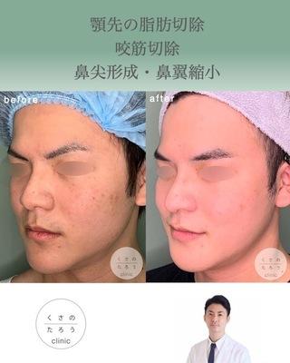 くさのたろうクリニックのあご先の脂肪切除・咬筋切除・鼻尖形成・鼻翼縮小の症例写真(ビフォー)