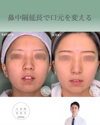 くさのたろうクリニックの鼻中隔延長で口元をきれいにするの症例写真(アフター)
