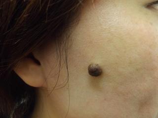 西新宿杉江中央クリニックのホクロ治療:切開の症例写真(ビフォー)