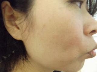 西新宿杉江中央クリニックのホクロ治療:切開の症例写真(アフター)