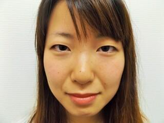 西新宿杉江中央クリニックの二重埋没の症例写真(ビフォー)