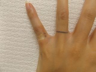 西新宿杉江中央クリニックのタトゥー除去:ピコレーザーの症例写真(ビフォー)